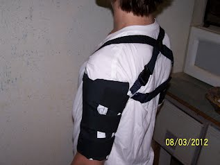 Subluxation Shoulder Sling for Stroke
