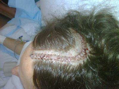 My Surgery